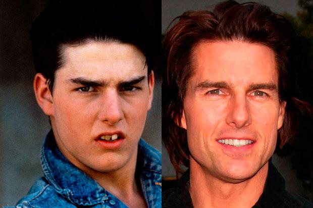 Tom Cruise: vi piacerebbe con questo sorriso?