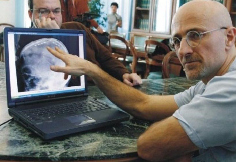 TRAPIANTO DELLA TESTA: POTREBBE DIVENTARE REALTÀ